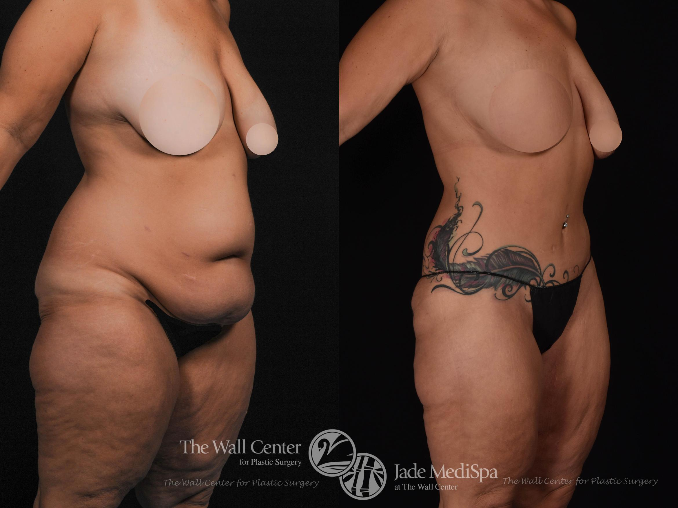 After Massive Weight Loss Case 534 Before & After View #2 | Shreveport, LA | The Wall Center