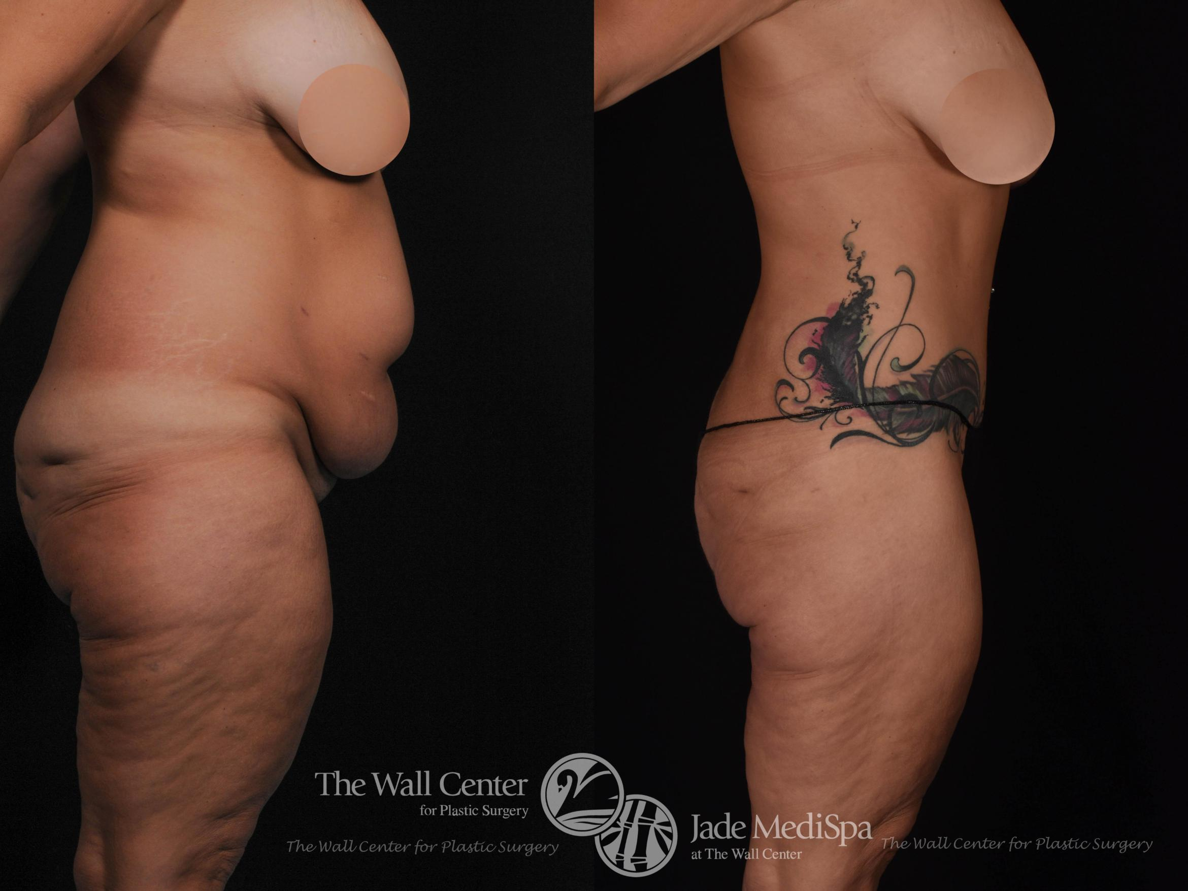 After Massive Weight Loss Case 534 Before & After View #3 | Shreveport, LA | The Wall Center