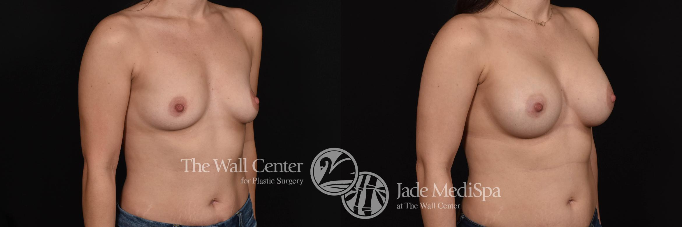 Breast Augmentation Case 740 Before & After VIEW #2 | Shreveport, LA | The Wall Center