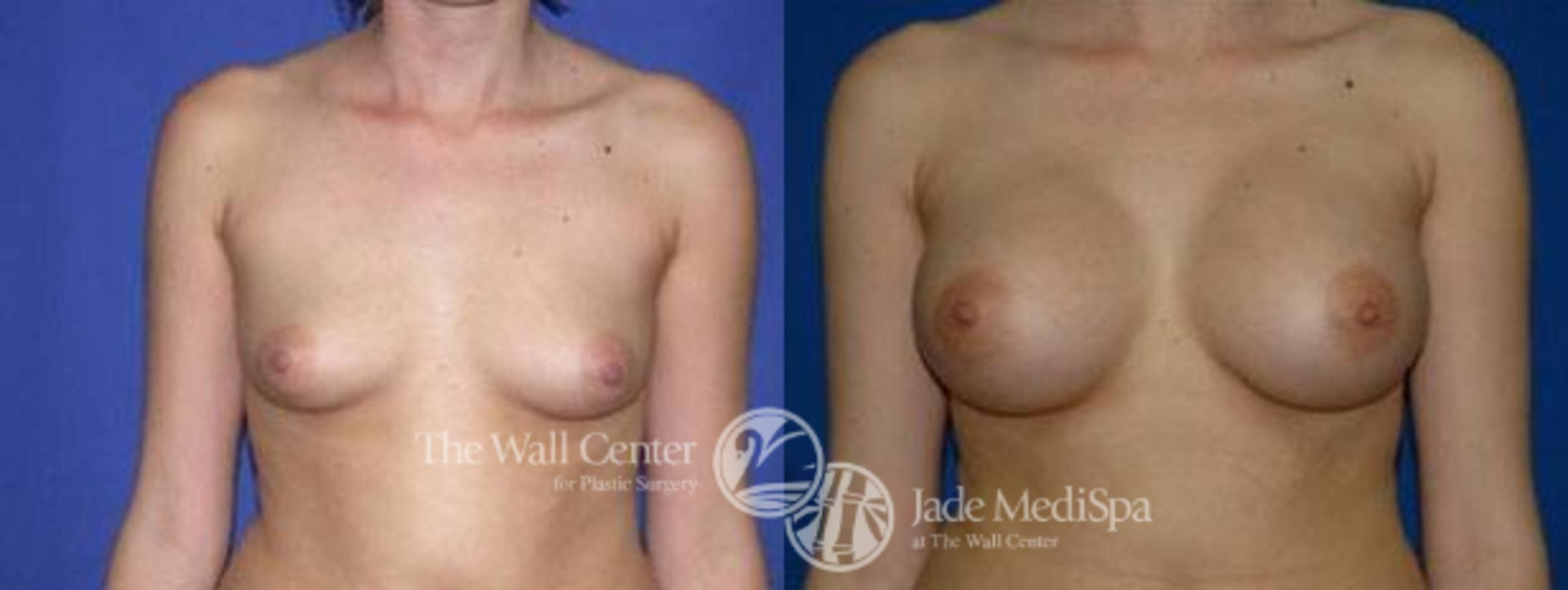 Breast Augmentation Case 99 Before & After View #1 | Shreveport, LA | The Wall Center