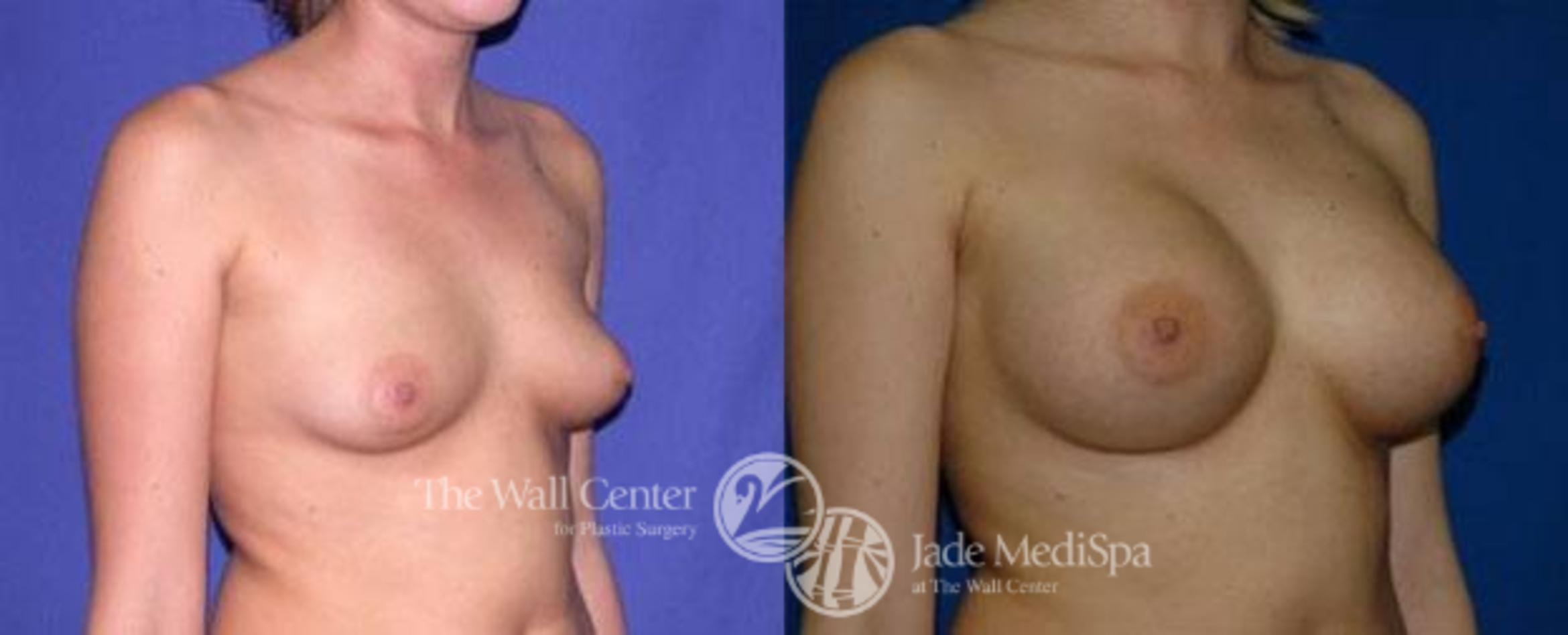 Breast Augmentation Case 99 Before & After View #2 | Shreveport, LA | The Wall Center