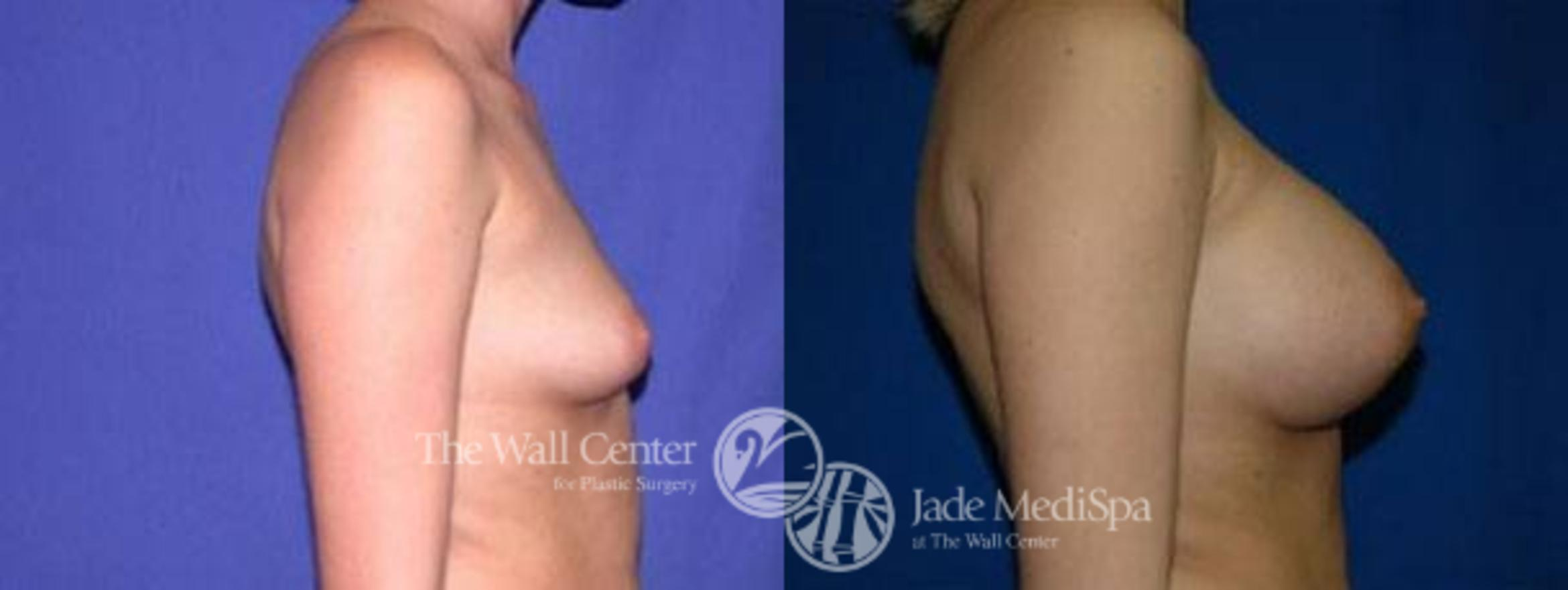 Breast Augmentation Case 99 Before & After View #3 | Shreveport, LA | The Wall Center