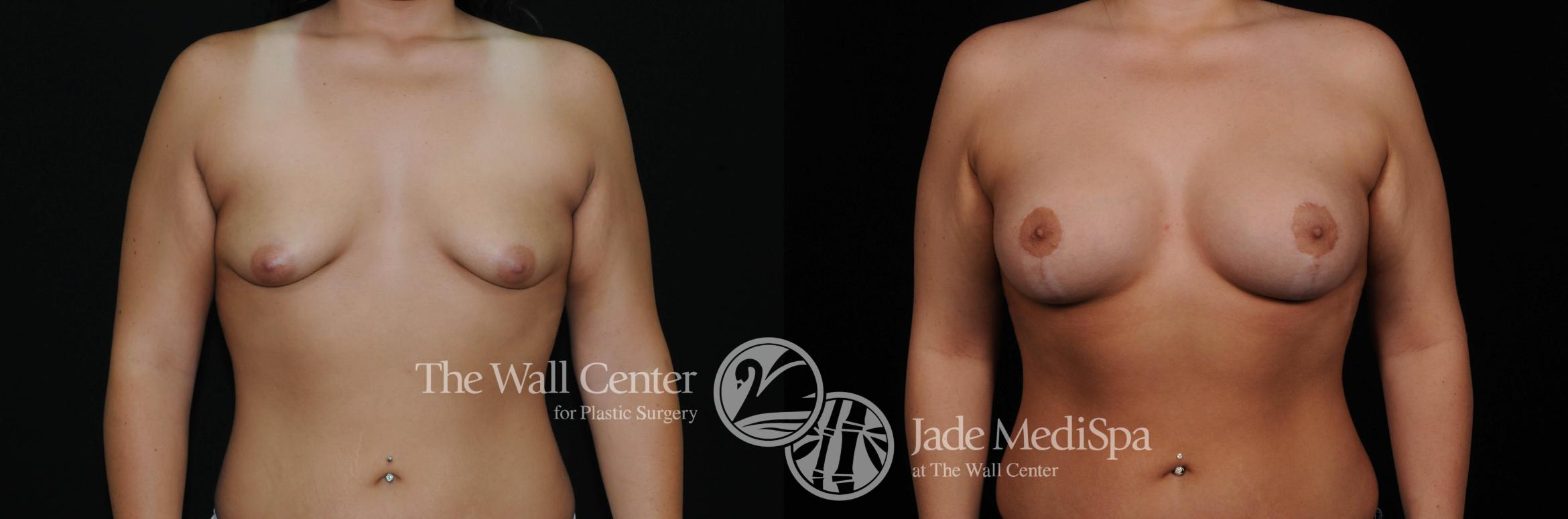 Breast Augmentation with Lift Case 461 Before & After View #1 | Shreveport, LA | The Wall Center