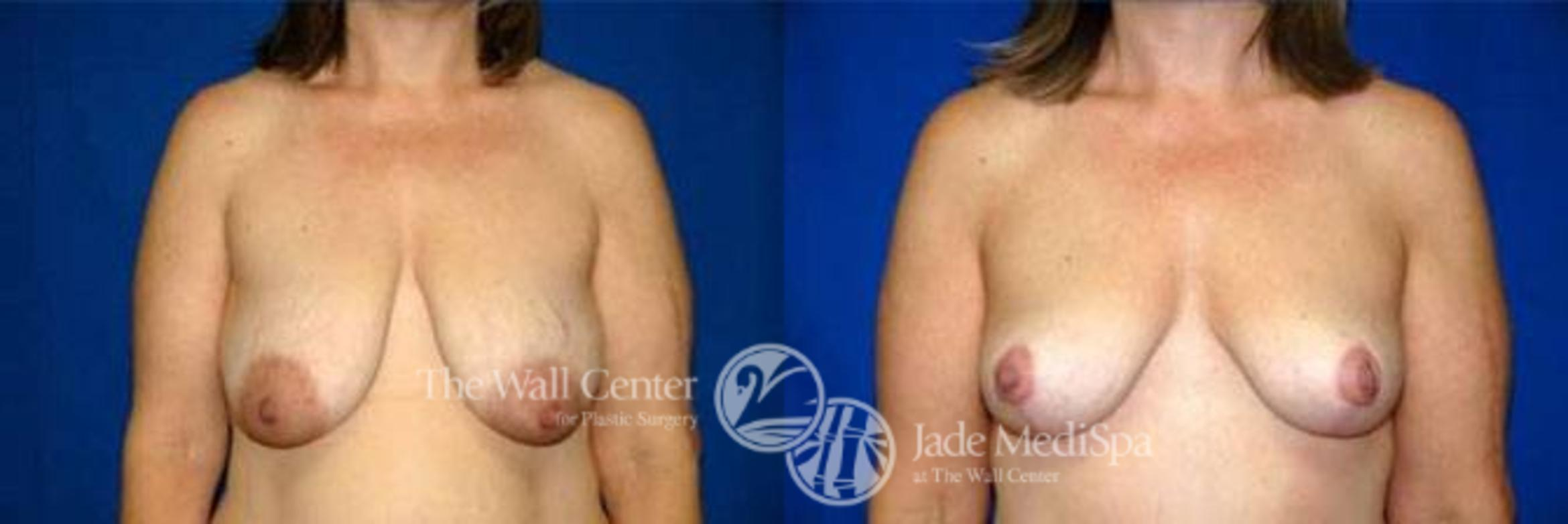 Breast Lift Case 122 Before & After View #1 | Shreveport, LA | The Wall Center