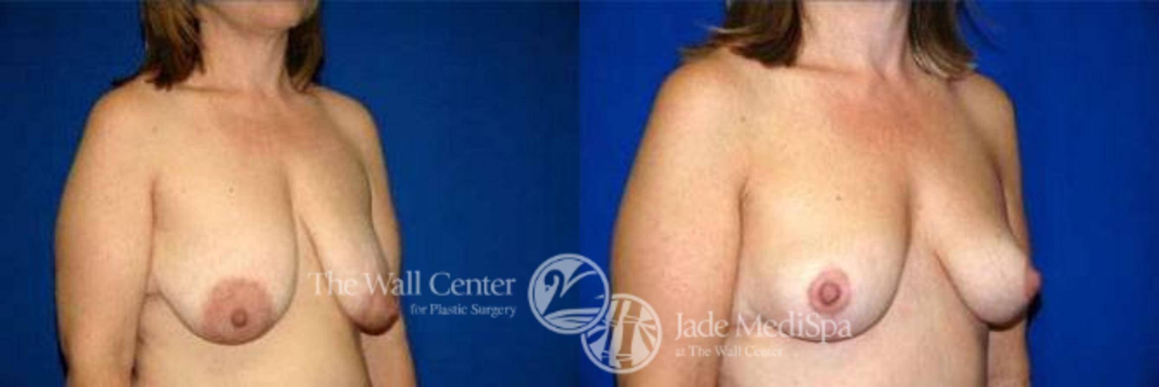 Breast Lift Case 122 Before & After View #2 | Shreveport, LA | The Wall Center