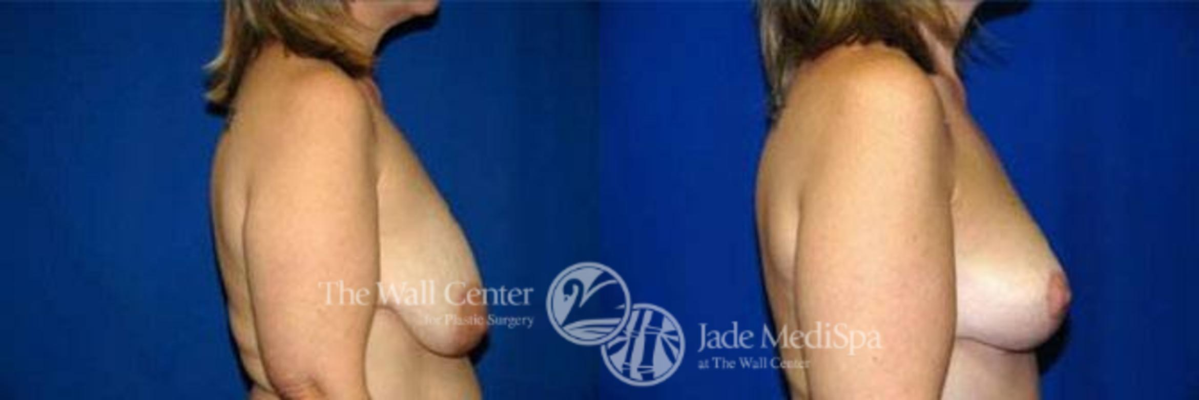 Breast Lift Case 122 Before & After View #3 | Shreveport, LA | The Wall Center