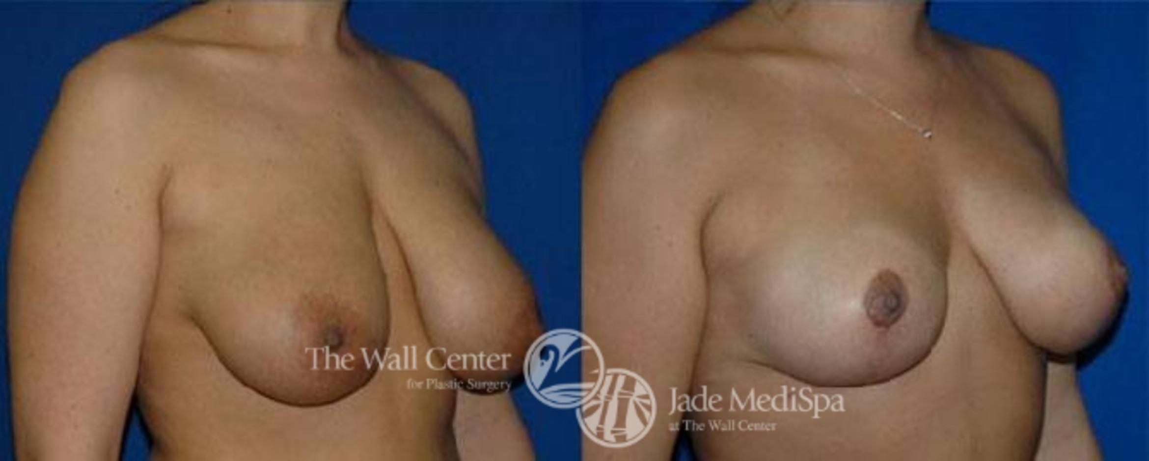 Breast Lift Case 123 Before & After View #2 | Shreveport, LA | The Wall Center