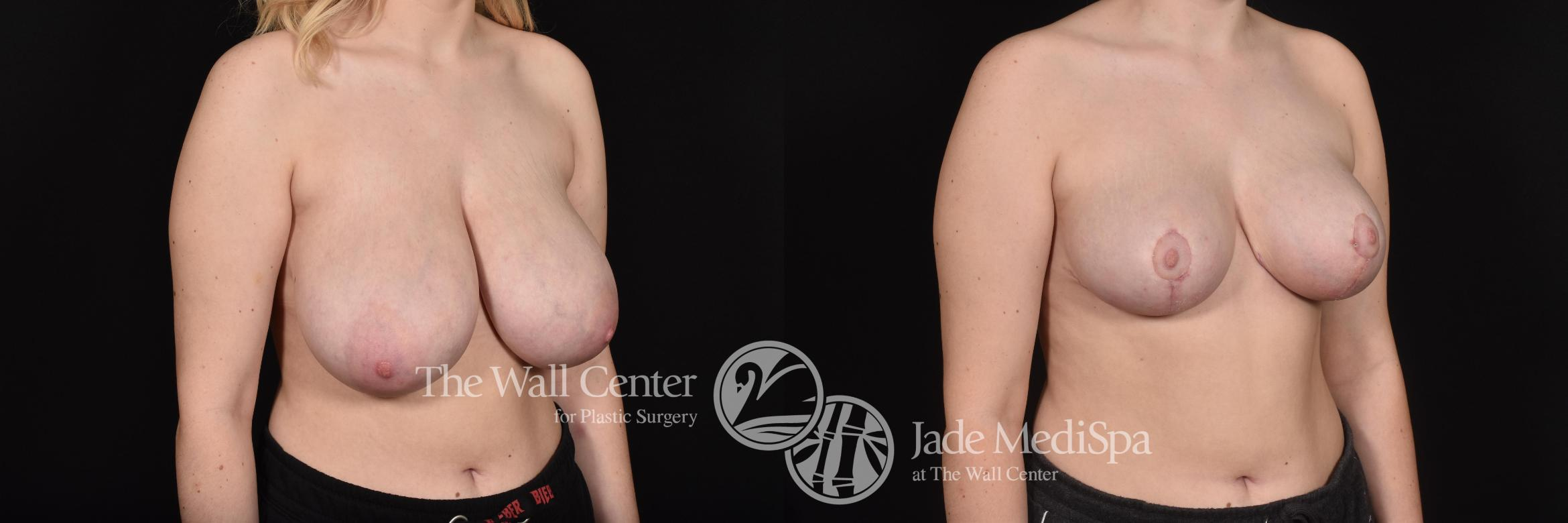 Breast Reduction Case 600 Before & After View #2 | Shreveport, LA | The Wall Center