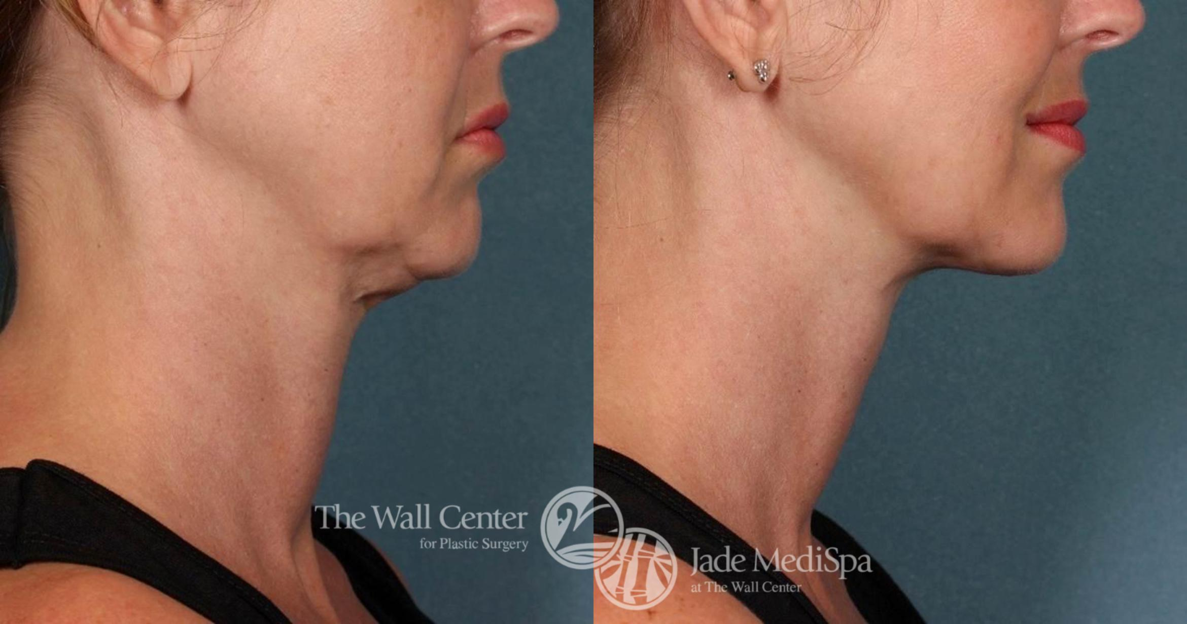 Double Chin Reduction Case 518 Before & After View #1 | Shreveport, LA | The Wall Center