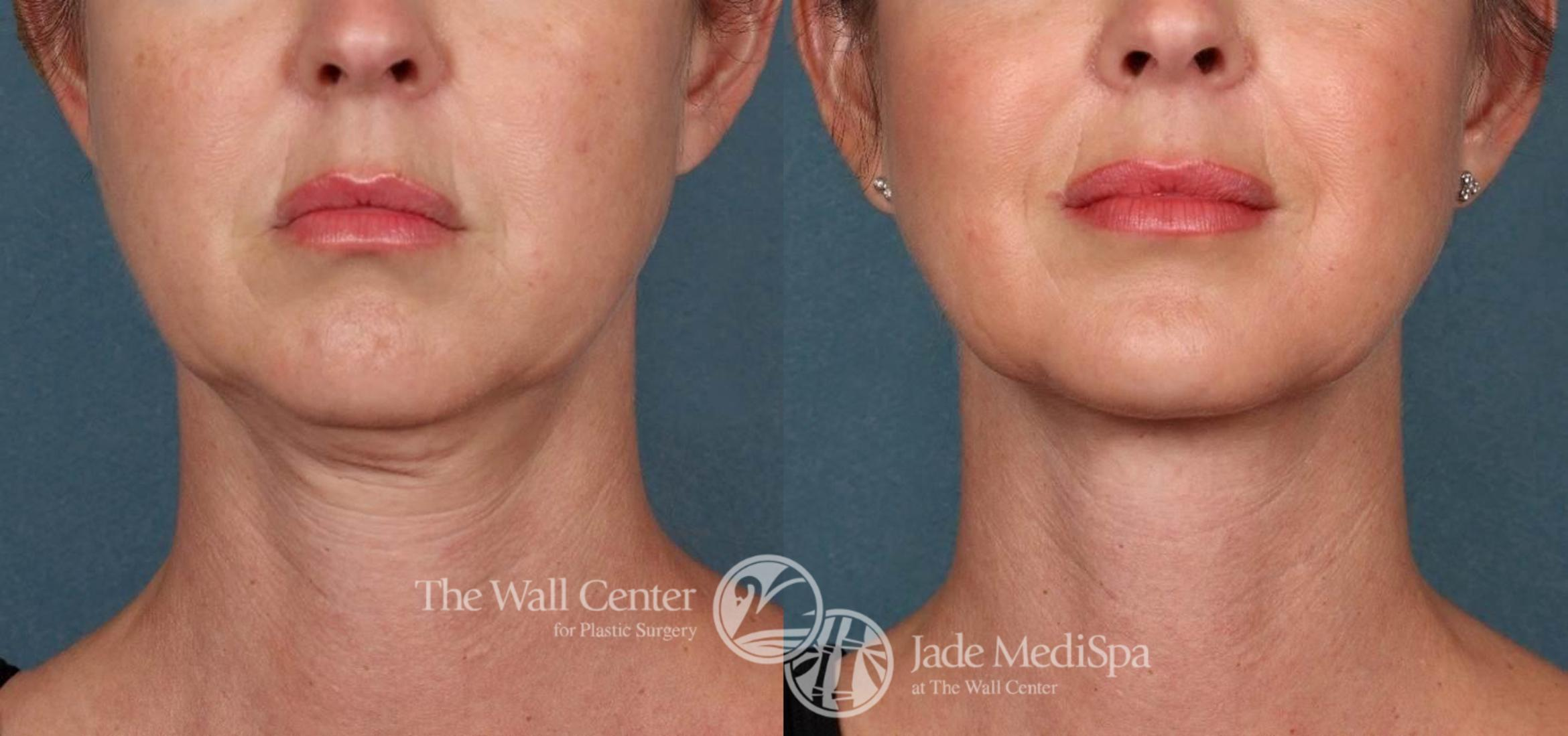 Double Chin Reduction Case 518 Before & After View #2 | Shreveport, LA | The Wall Center
