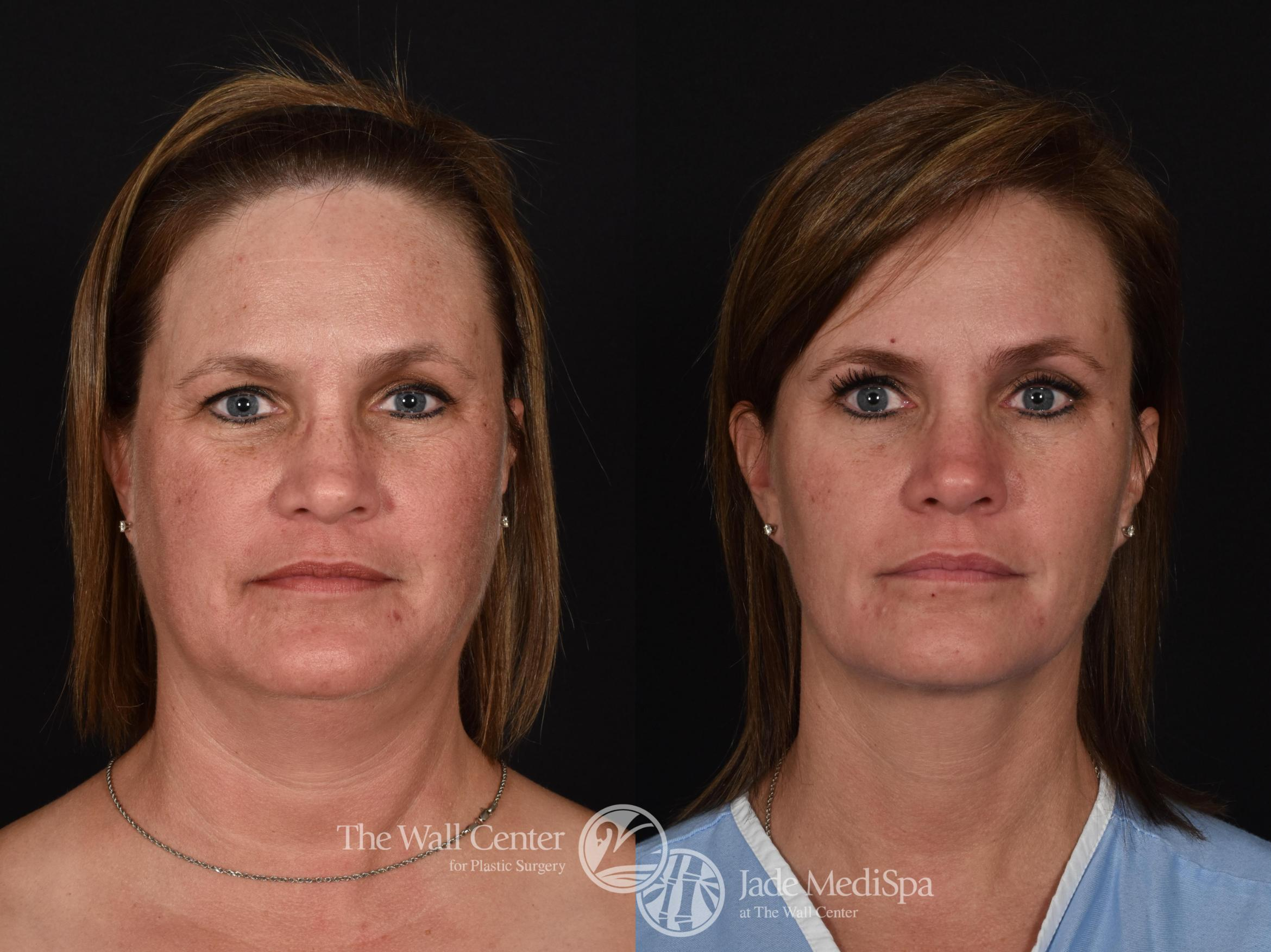 Double Chin Reduction Case 725 Before & After VIEW #1 | Shreveport, LA | The Wall Center
