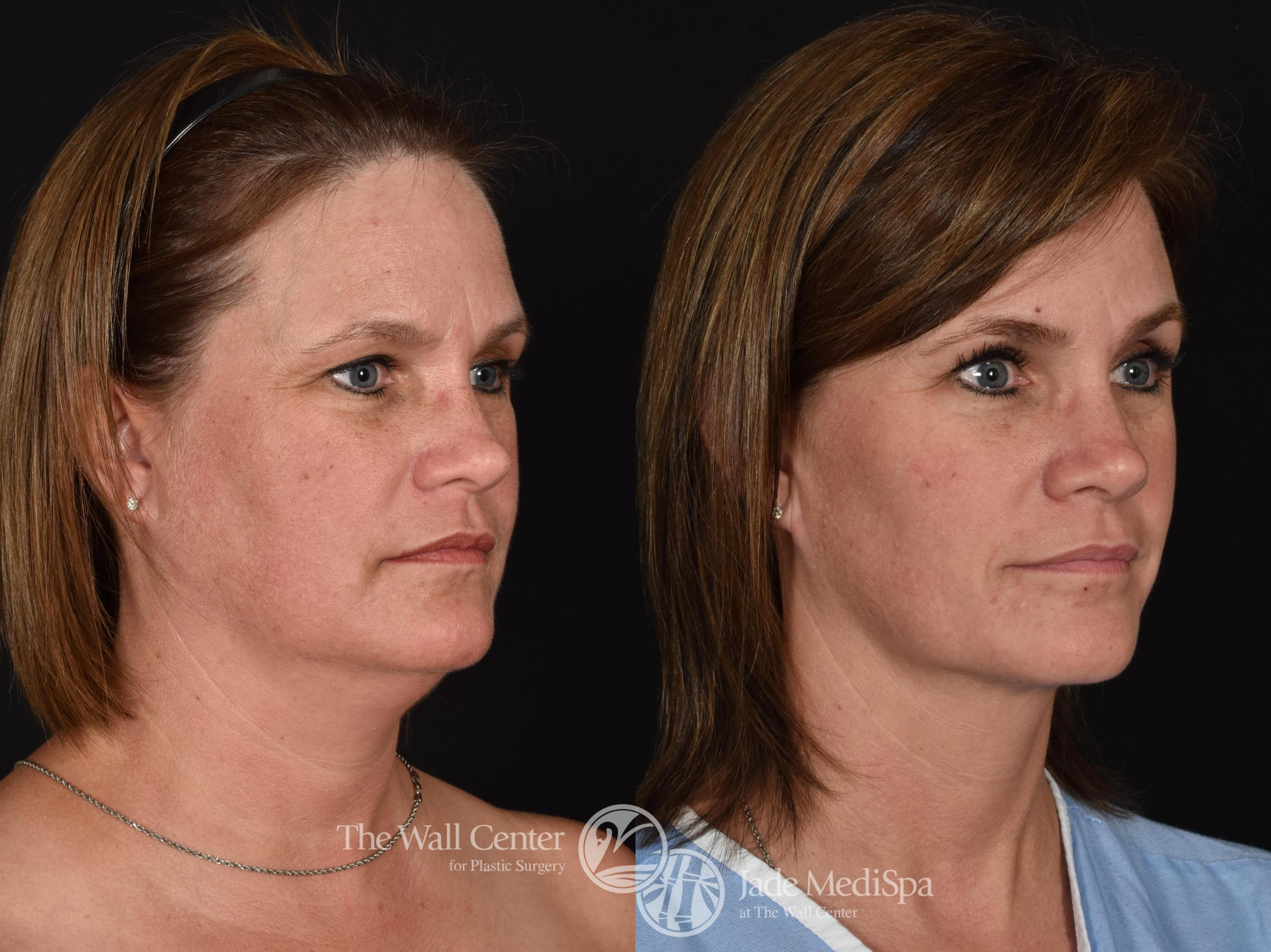 Double Chin Reduction Case 725 Before & After VIEW #2 | Shreveport, LA | The Wall Center