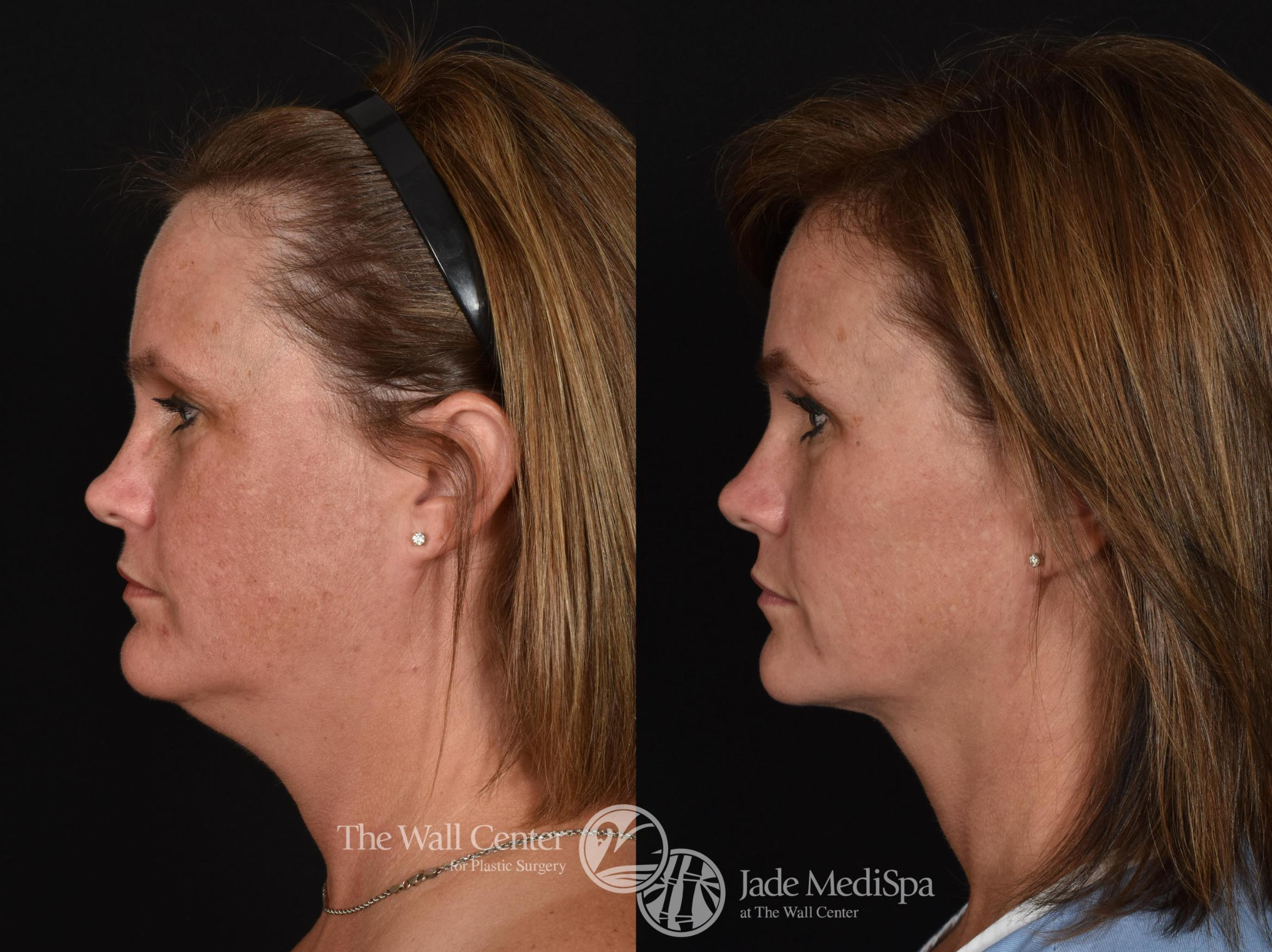 Double Chin Reduction Case 725 Before & After VIEW #3 | Shreveport, LA | The Wall Center
